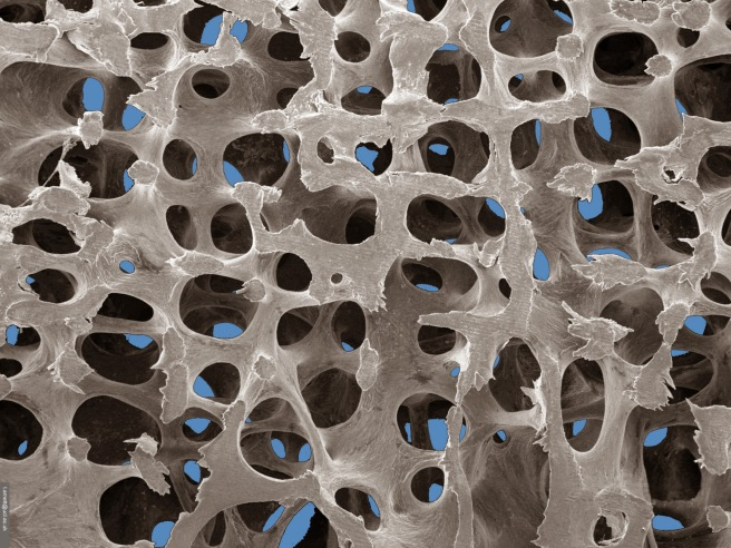 Low power SEM of normal trabecular bone (t.arnett@ucl.ac.uk)