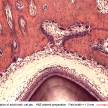 tooth-eruption-osteoclasts