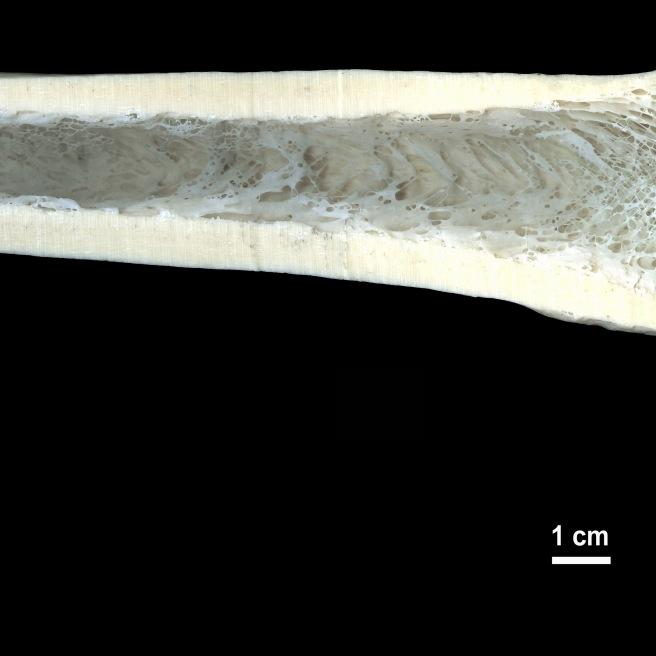 Section of femur